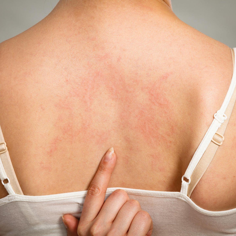 Kann Nesselsucht durch Stress ausgelöst werden. Wenn die Haut brennt und juckt.