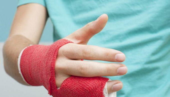 Juckt gips arm gebrochen Arm bebrochen!!!